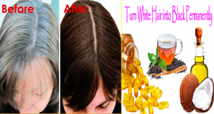 Homemade Remedy to White Hair Treatment In 7 Days