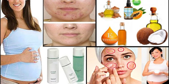 How to Cure Pregnancy Acne with Natural Ingredients