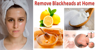 Remove Blackheads or Whiteheads fast