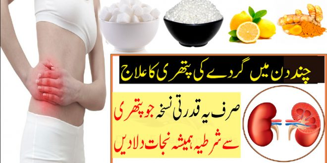 Kidney Stone Removal Naturally Fast