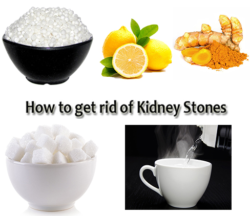 Kidney Stone Removal Naturally Fast Just in 8 Days