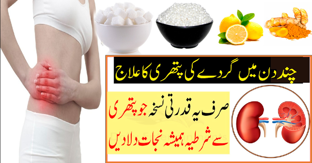 how to get rid of kidney stones naturally home remedies
