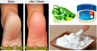Remedy to Cure Cracked Heels Problem in 1 Day