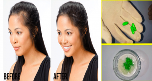 Remedy to Prevent Hair Fall Naturally fast