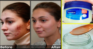Natural Treatment to Remove Pimples Overnight