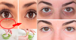 how to Remedy to Remove Dark Circles & Wrinkles in Winter
