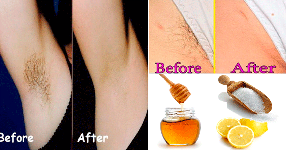 Best Way To Remove Pubic Hair Permanently With Sugar,honey