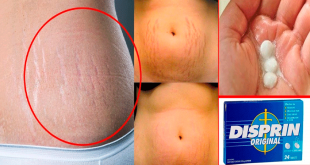 how to remove stretch marks permanently