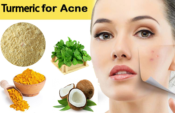 At home remedies for acne overnight