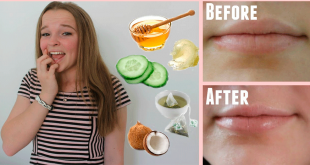 Get-Rid-of-Cracked-Lips-Overnight