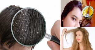 Best Remedy to Get Rid of Itchy Scalp