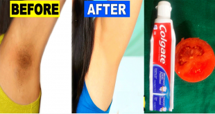 how to Lighten Your Dark Underarms with Toothpaste in 2 Minutes