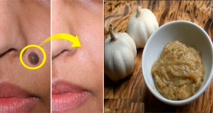 easy way to Remove Mole Permanently in 7 Days