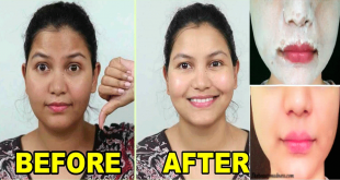 Winter Skin Whitening Facial for Bright, Fair and Glowing Skin