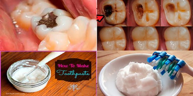 how to Get Rid of Tooth Cavity Naturally