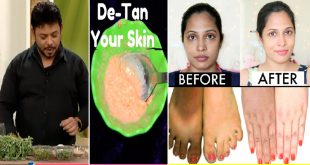 Home Remedy to Get Rid of Tanned skin