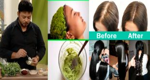 Home Remedy to Re-grow Hair Naturally Fast