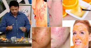 Orange Face Pack to Treat Acne & Acne Scars Fast