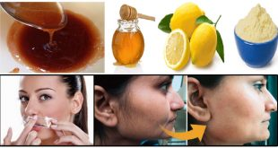 3 Ingredient Recipes to Remove Unwanted Hair At Home