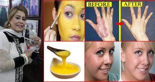 How to Get Rid of Burn Scars and Marks At Home by Rani Appa