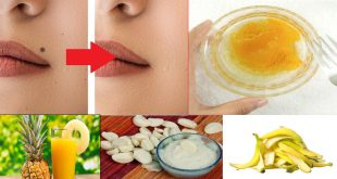 How to Get Rid of Skin Moles at Home Naturally & Fast