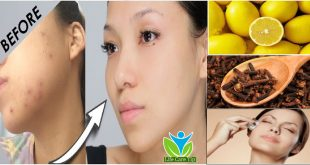How to Naturally Get Rid of Acne Scars & Pimples with Home Remedies