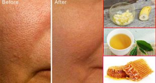How to Reduce Large Pores Permanently With Only 1 Ingredient