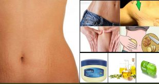How to Remove Stretch Marks Permanently Using Home Remedies
