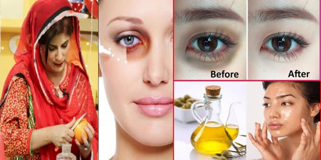 How to Use Castor Oil & Rice Flour for Dark Circles At Home Naturally