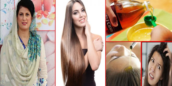Natural Effective Home Remedies for Dandruff and Hair Itch