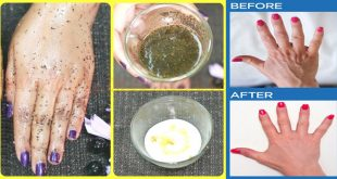 Remove Wrinkles from Hands & Get Baby Soft Hands At Home