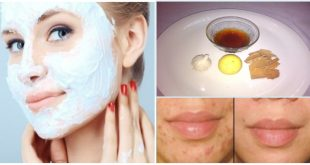 The Most Effective Homemade Face Mask for Treating Acne-Prone Skin