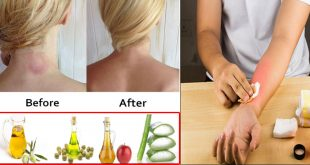 Tips to Get Rid of Ringworm Using one Effective Home Remedy