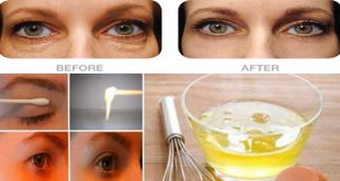 Two Effective Remedies to Lift Droopy Eyes 100% Working