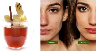 Detox Tea to Prevent Pimples, Acne and Other Skin Problems Naturally