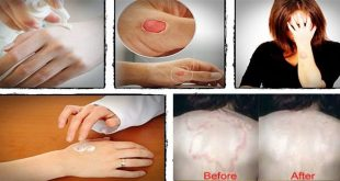 Four Best Natural Home Remedies for Ringworm Treatment