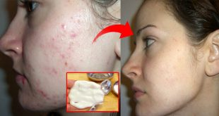 How to Get Rid of Large Open Pores Permanently in 1 Week