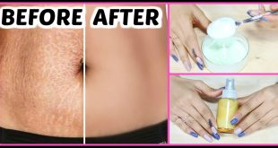How to Get Rid of Stretch Marks After Pregnancy With Home Remedies