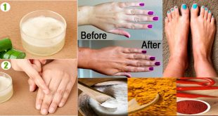 How to Treat Dry, Rough Hands 6 Household Ingredients That Work