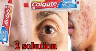 How to Use Toothpaste for Acne Treatment by Dr. Umme Raheel