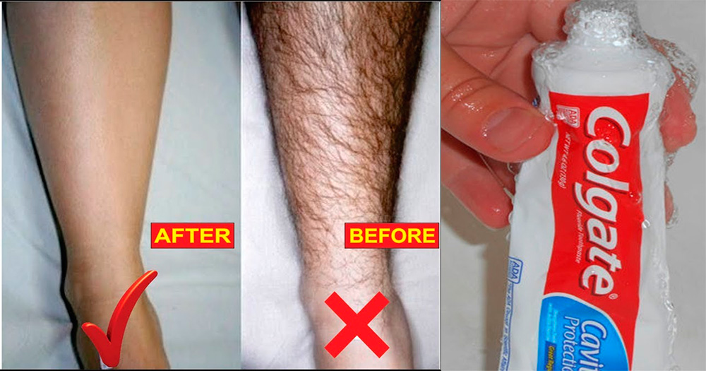 Remove All Unwanted Hair With Colgate In Just 5 Minutes Naturally